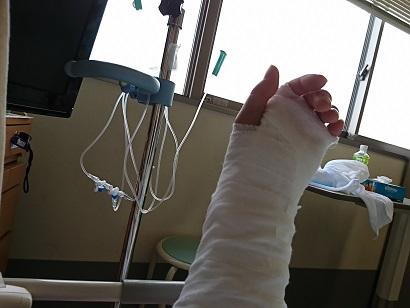 左手首が交通事故で折れた時の画像